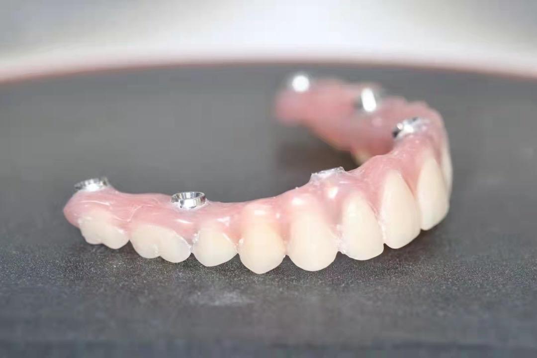 当天种牙当天用!蚌埠二院口腔治疗中心成熟开展即刻种植牙技术